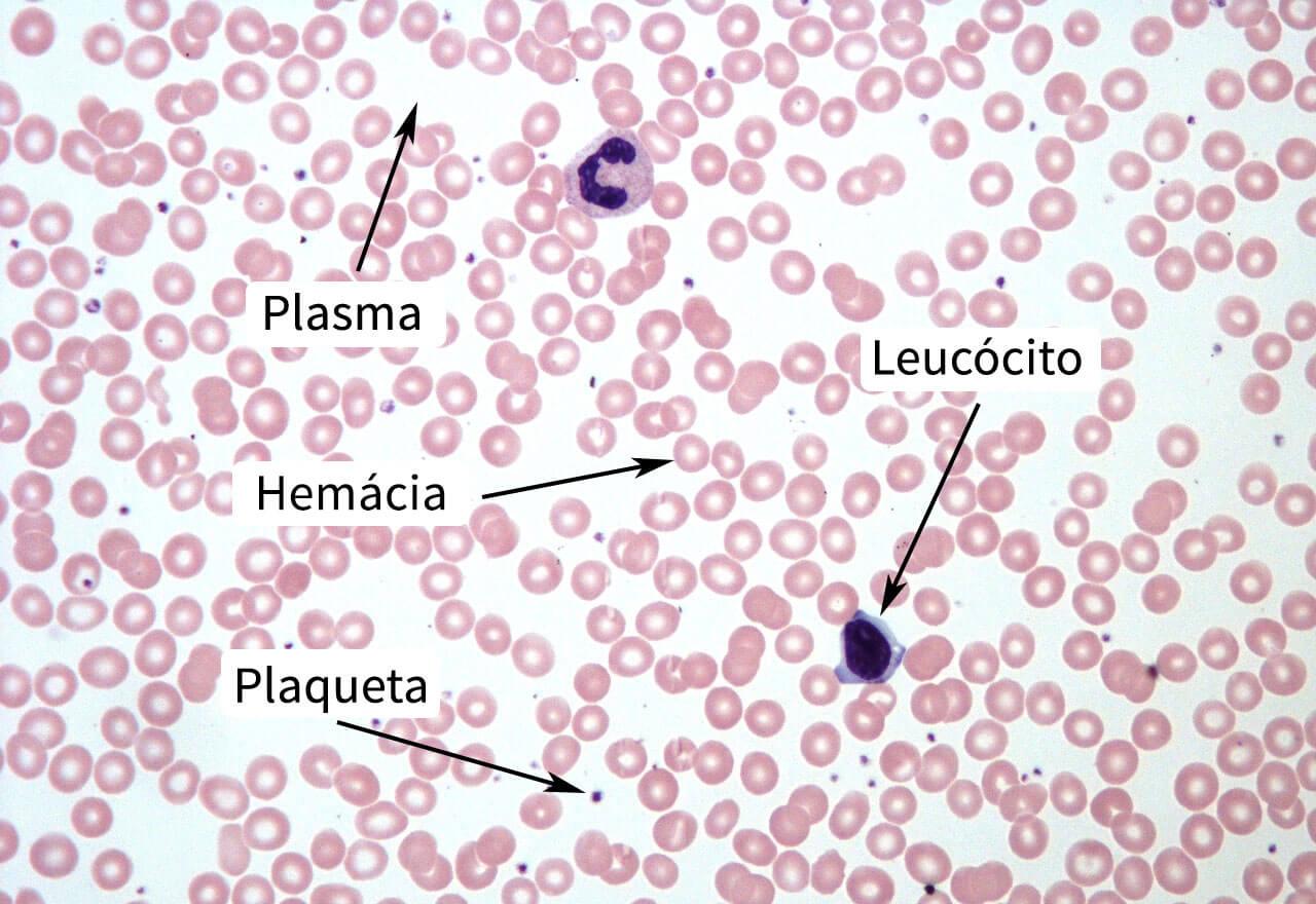 Plasma, Hemácia, Leucócito e Plaqueta